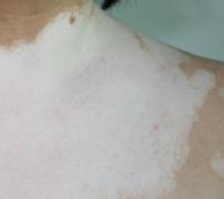 如何预防白癜风疾病的复发
