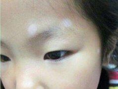 白癜风对小孩的危害有哪些