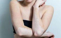 女性胸部出现白斑应该如何防止扩大呢