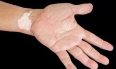 成人白癜风治疗中要注意什么呢?