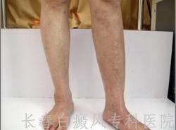 腿部患了白癜风怎么办