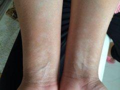 双臂白癜风疾病危害有哪些